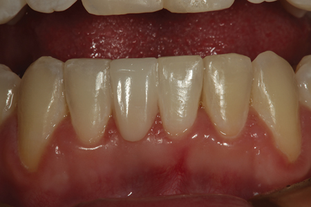 A retracted facial view of the completed direct composite fiber reinforced bridge replacing tooth number 25. When this patient is older, an implant can be considered if so desired.