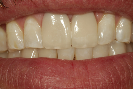 A postoperative smile view of the patient shown in Figure 13. Some white composite tint was placed at the incisal edge on the dentin layer prior to placement of the enamel increment to better match the patients' natural surrounding teeth.