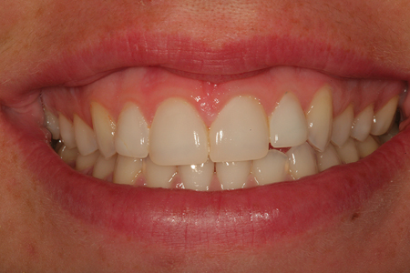 A postoperative view after placement of prefabricated composite veneers to correct her problem. This photograph was taken at 5 years post placement.