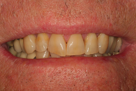 A preoperative view of a patient that is in need of a functional and aesthetic dental rehabilitation. His chronological age is 53 years old. His teeth have the color and wear typically seen on a person in their seventies.