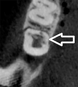 Axial view of CBCT image of tooth 4.7 illustrating the resorptive defect, involving mesial Interproximal and lingual surfaces.