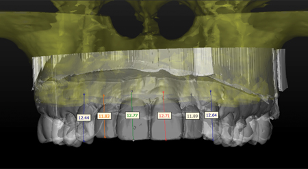 A superposition of an optical scan of themaxilla diagnostic cast is overlaid on aCBCT. Measurements from the incisalteeth tip to the bone crest are drawand recorded on the study cast. Thesemeasurements determine the bone cresttopography in the aesthetic zone.