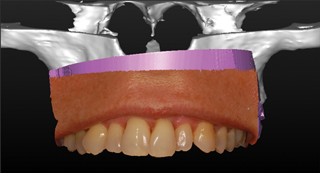 A 2D photograph is overlaid on a 3Dobject. This technic is called photo mapping.A triple image superpositionis therefore achieved from a CBCTopticalscan – and a 2D photograph.