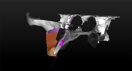 An implant is virtually planned in thistriple scan (CBCT-optical scanphotomapping).