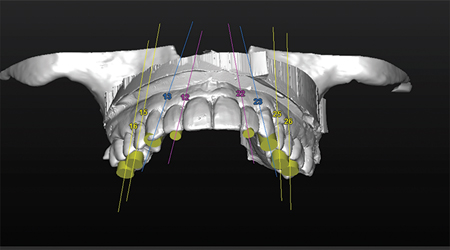An occlusal 3D view of the plannedimplants positions in relation to thediagnostic wax-up, depicts theemergence profile of the implants exitposition on the teeth.