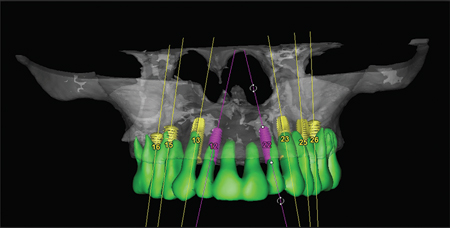 Implants are planned in the trianglespace palatal to the incisors.
