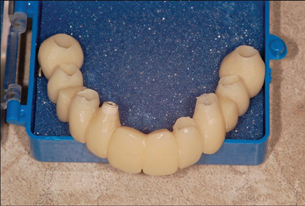 A one-piece acrylic immediate fixeprosthesis was prepared on the implantabutments.