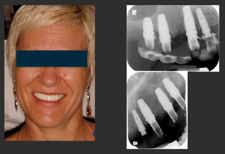 Immediate temporary fixed prosthesis. Six-months post-op radiograph.