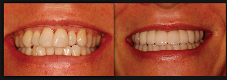 Before and after photograph. Final prosthesis is a zirconia to porcelain cementedrestoration. Notice, as predicted, correction of vertical maxillary excess andpositioning of the final transitional line under the superior lip.