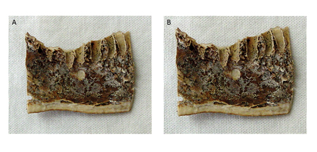 (A) 0.5 mm and (B) 1 mm bone defects in the cortical plate.