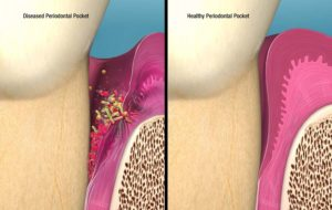 Infected pocket vs. Healthy pocket post treatment