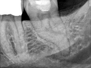 Pretreatment image of mandibular left second molar.