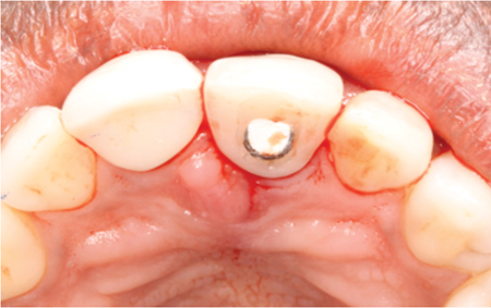 Final post-operative result after insertion (occlusal view).