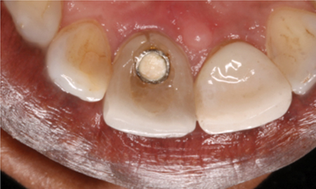 Palatal aspect of acrylic temp fractured due to occlusal forces.