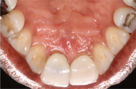 Initial presentation, note the open margin on the palatal aspect of crown 11.