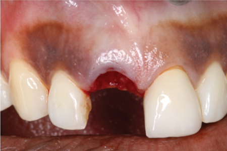 Careful extraction of tooth 11 with minimal soft tissue trauma.