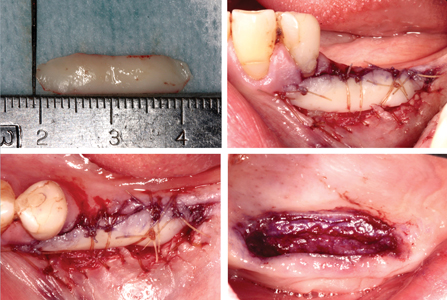 Graft affixation and donor site stabilization.