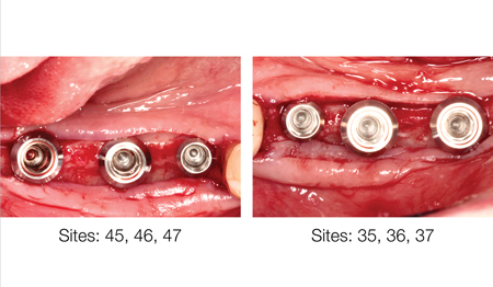 Implant placement.
