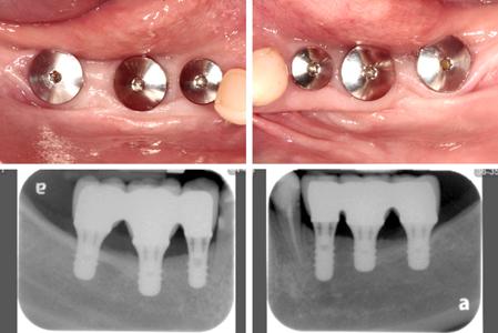 Implant restoration.