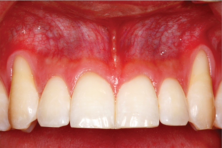 Root coverage procedures are indicatedwhen there are esthetic demands.