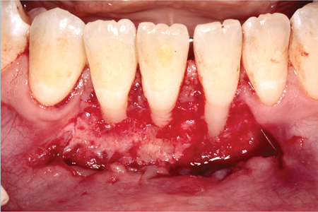 Partial-thickness flap.