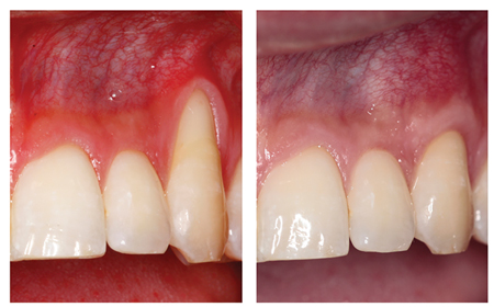 A subepithelial connective tissue graft provides both rootcoverage as well as a gain in width of keratinized tissue.