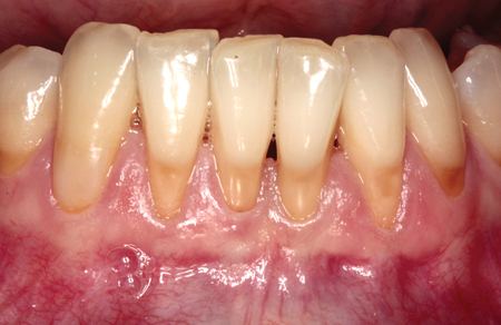 Tooth brush trauma is the most commoncause of gingival recession.