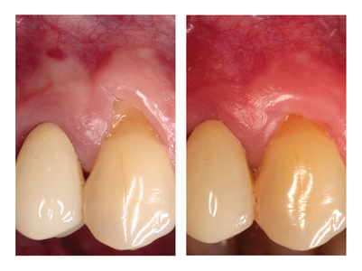 Stillman cleft and associated recessioncaused by a traumatic flossing technique.Recession was grafted and flossingtechnique was adjusted.