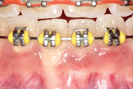 Gingival recession of bacterial ethologycaused by accumulation of plaque on atooth's facial aspect.