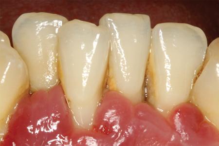 Gingival recession due to periodontitis,where specific periodontopathogenicbacteria provoke connective tissueattachment loss.