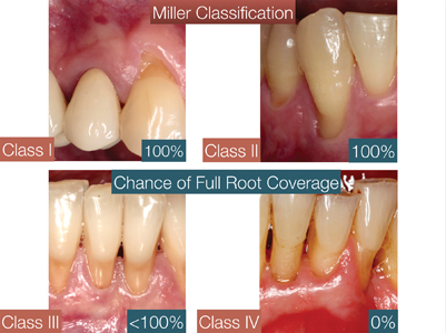 Miller classification system for gingival recession.