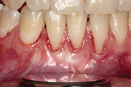 Gingival augmentation may be indicatedwhen recession is progressing and whenthere is discomfort during chewing.