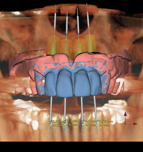 Nobel Clinician SmartfusionTM initial digital planning. Blue is the digital rendering of the desired final tooth position. (Digital Wax-up) Pink is current tissue position. (Model)