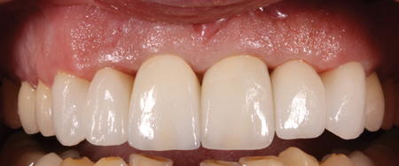 NobelProcera® Full Contour Zirconia crowns. Frontal view.