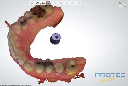 Digital workflow and implant positioning based on On1TM IOS healing cap (PEEK).