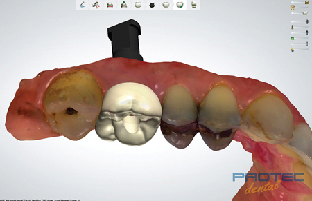 Digital workflow and On1TM base monolithic zirconia screw-retained final crown design.