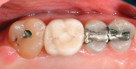 Occlusal view of final screw-retained crown on On1TM base.