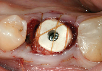 NobelParallelTM CC WP implant placed into immediate molar site and utilization of a PEEK anatomical healing abutment (gingival former).
