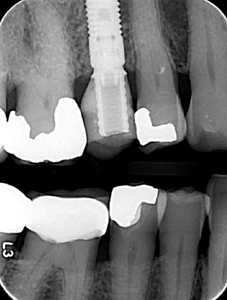 (A) Intraoral bitewing radiograph taken by the restoring dentist of the screw-retained provisional on implant #4. (B) Intraoral periapical radiograph taken by the restoring dentist of the final screw-retained implant crown.