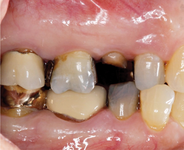 Clinicians Guide for Post-Extraction Preservation of the Alveolar Socket: A Review