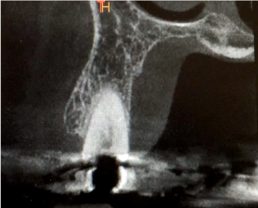 Images A & B show panoramic and axial sections of the CBCT scan for tooth #4.