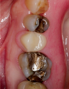 Clinical photographs showing the interim RPD (A), the Fit Checker Paste revealing the pressure area on the buccal aspect of the flange, and occlusal view of the interim RPD fully seated in place (C).