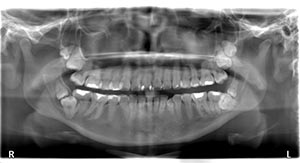Panoramic scan showing third and fourth molars. In the lower right jaw are characteristic unilateral kissing molars (KM, class III).