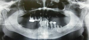 KC can be associated with cystic formation and/or transmigration. Transmigration is usually defined as a phenomenon in which more than half of the length of an unerupted tooth has passed the midline.