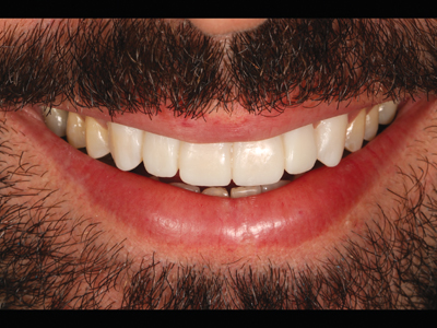 Smile with provisional veneers.