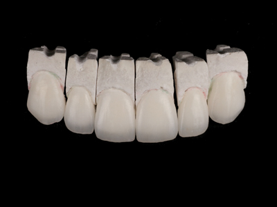 Feldspathic veneers on refractory dies.