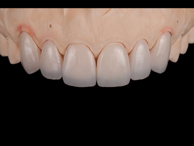 Feldspathic veneers on solid cast; frontal view.
