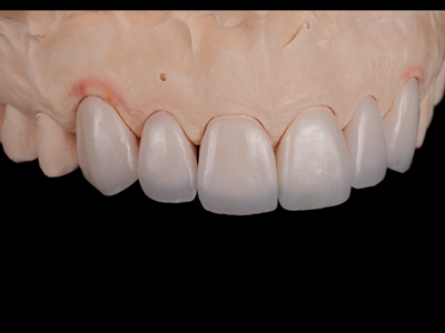 Feldspathic veneers on solid cast; right view.