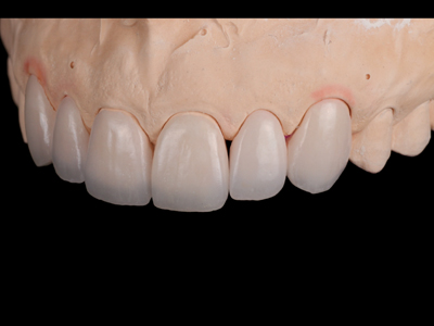 Feldspathic veneers on solid cast; left view.