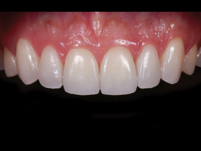 Feldspathic veneers after cementation.